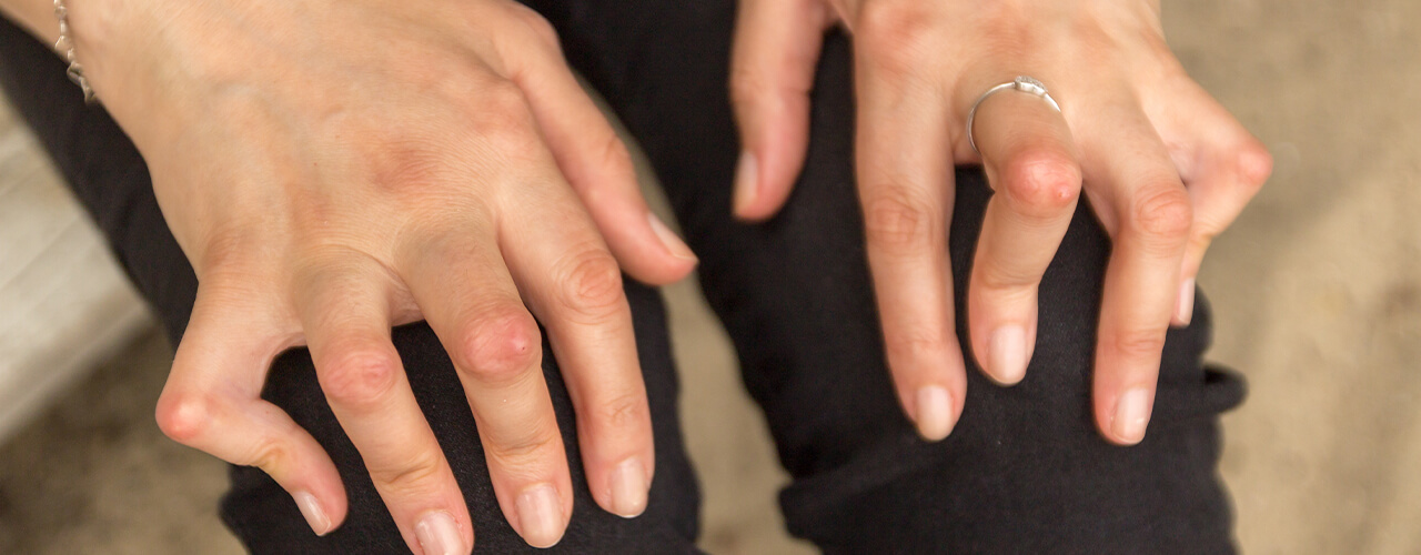 Pain Relief for Arthritis Hillsboro, TX